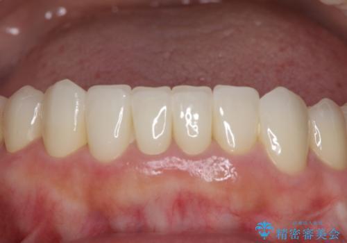 この際全てをしっかりと治療したい 総合歯科治療の治療後