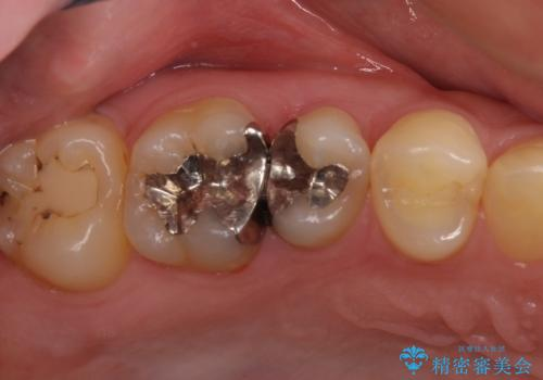 奥歯のむし歯治療 セラミックとゴールドインレーの治療前