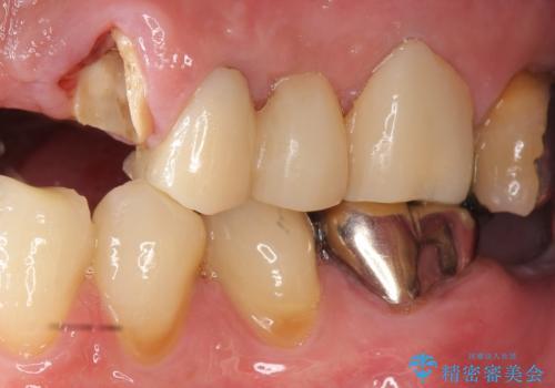 歯が折れた どうしても抜きたくない 歯の牽引で保存可能にの治療前