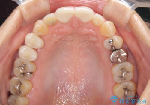 前歯のすきっぱ&奥歯の虫歯 セラミッククラウンで徹底的に治すの治療後