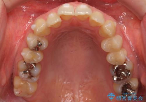 上の前歯が一部引っ込んでいる 下のがたがた マウスピース矯正の治療中