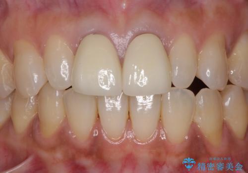 前歯をメタルフリーに 根管治療で不安を取り除いてからの症例 治療後