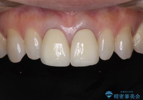 前歯をメタルフリーに 根管治療で不安を取り除いてからの治療後