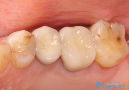 奥歯が痛い。根管治療~オールセラミッククラウンの治療の症例 治療後