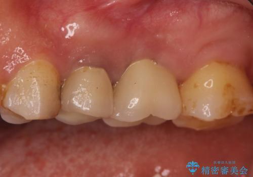 奥歯が痛い。根管治療~オールセラミッククラウンの治療の治療後