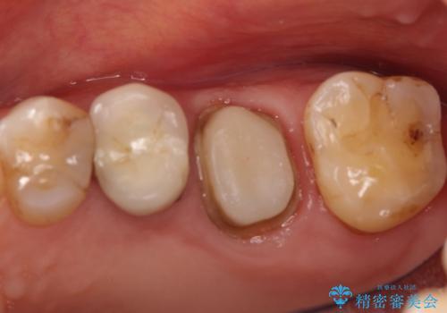 奥歯が痛い。根管治療~オールセラミッククラウンの治療の治療中