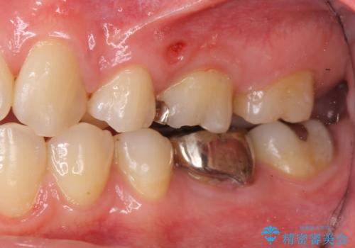 セラミックインレー 下の一番奥歯 歯ぐきの厚みを減らしてぴったりに入れます(ディスタルウェッジ+骨外科)の治療前