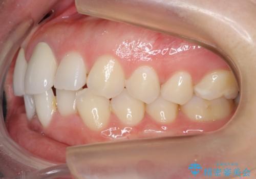 口ゴボでお悩みの方必見! 不自然なセラミックをやり直す矯正 セラミックだけでは、口元は下がりません。の治療前