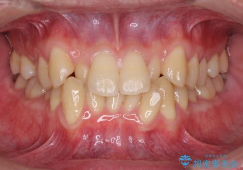 前歯のガタガタの矯正 下顎の前歯を1本抜歯してのインビザライン矯正の症例 治療前