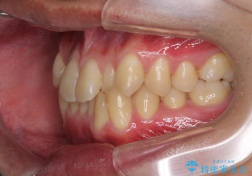 前歯のガタガタの矯正 下顎の前歯を1本抜歯してのインビザライン矯正の治療前