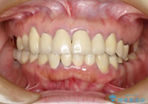 この際全てをしっかりと治療したい 総合歯科治療の症例 治療前
