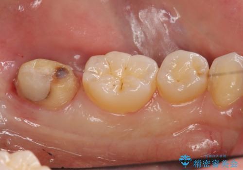 他院で次に虫歯になったら治せないと言われた 歯周外科手術でしっかり治療(APF)の治療中