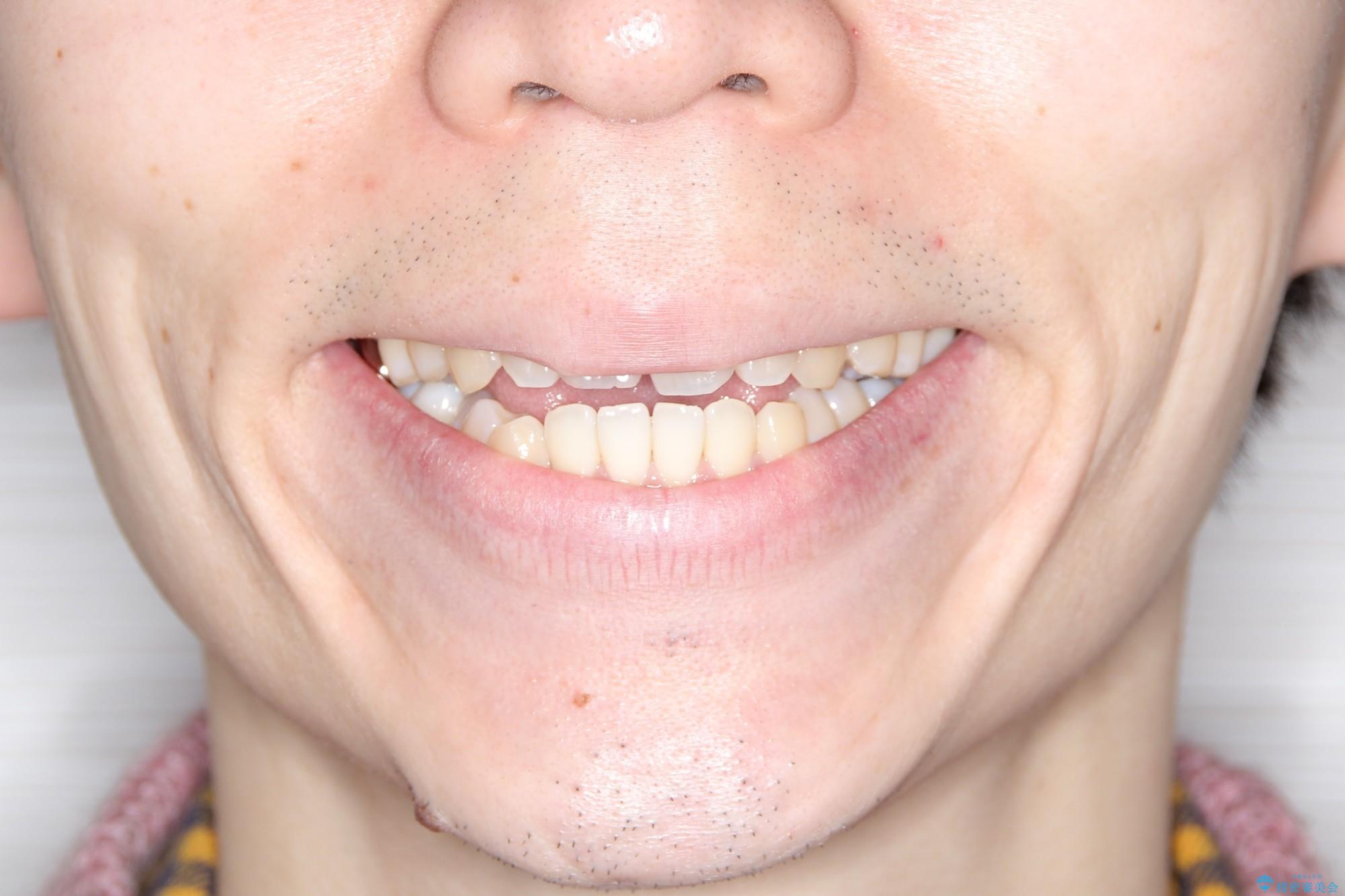 前歯でものが噛み切れない インビザラインによるオープンバイトの治療の治療前(顔貌)