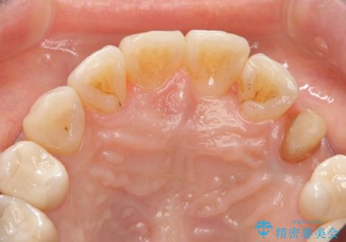 犬歯の変色 マウスピースで手軽にエクストリュージョン 歯ぐきの炎症をおさめますの治療中
