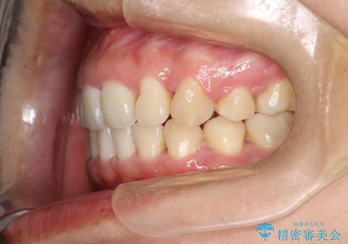 上下の歯のガタガタ ワイヤーでの抜歯矯正で整った歯並びへの治療後