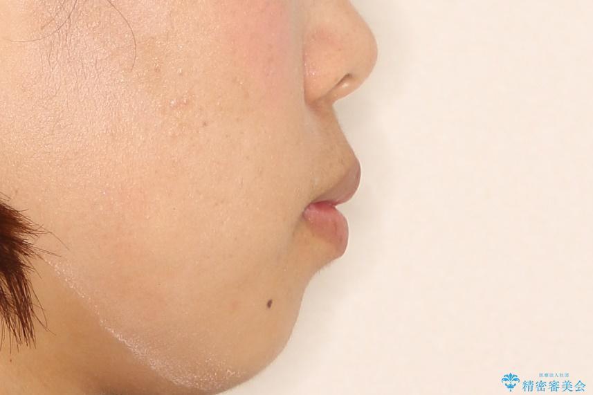 上下の歯のガタガタ ワイヤーでの抜歯矯正で整った歯並びへの治療前(顔貌)