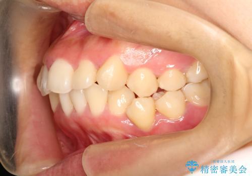 上下の歯のガタガタ ワイヤーでの抜歯矯正で整った歯並びへの治療前