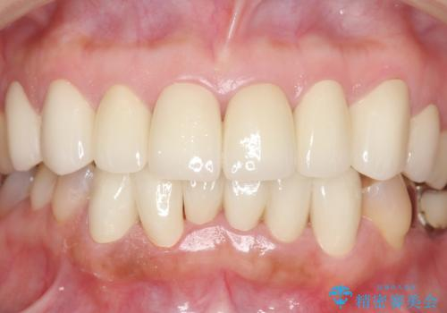 オールセラミッククラウン・セラミックインレー 口腔内全体の見た目の改善の治療後