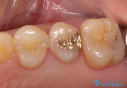 虫歯の治療。ゴールドインレーによる治療の症例 治療後