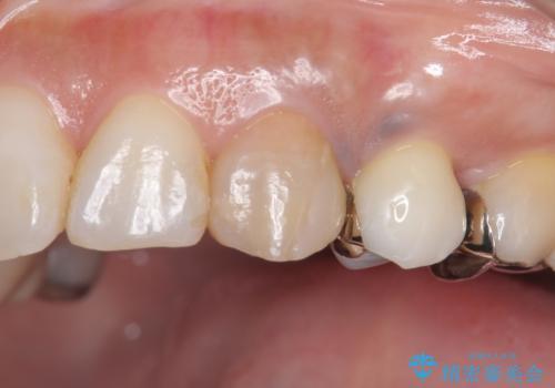 犬歯の変色 マウスピースで手軽にエクストリュージョン 歯ぐきの炎症をおさめますの治療前