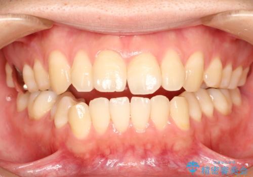 前歯でものが噛み切れない インビザラインによるオープンバイトの治療の治療前