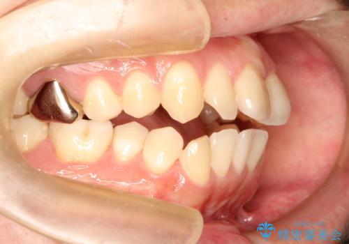 前歯でものが噛み切れない インビザラインによるオープンバイトの治療の症例 治療前