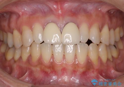 前歯をメタルフリーに 根管治療で不安を取り除いてからの治療前
