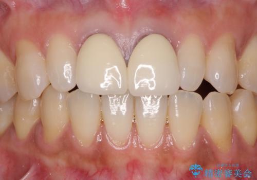 前歯をメタルフリーに 根管治療で不安を取り除いてからの症例 治療前