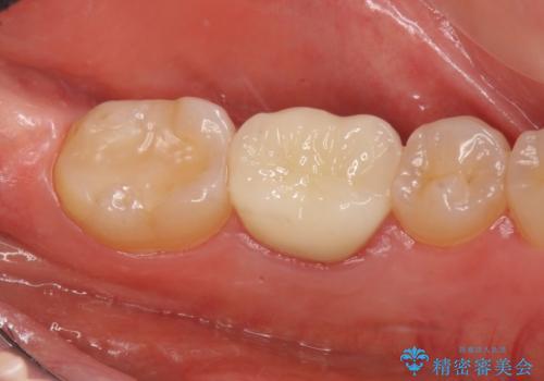 セラミックインレー 下の一番奥歯 歯ぐきの厚みを減らしてぴったりに入れます(ディスタルウェッジ+骨外科)の治療中
