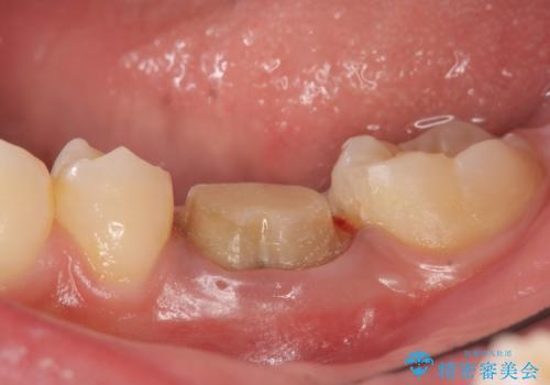 オールセラミッククラウン 治療途中の歯の再治療の治療中