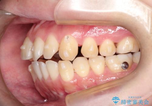 前歯でものが噛み切れない インビザラインによるオープンバイトの治療の治療中