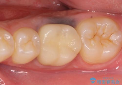 オールセラミッククラウン 治療途中の歯の再治療の治療後