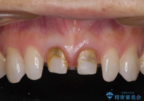 前歯をメタルフリーに 根管治療で不安を取り除いてからの治療中
