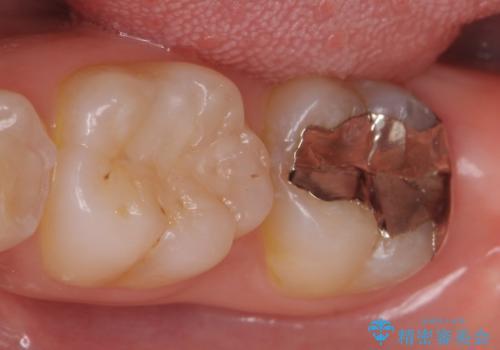 オールセラミッククラウン 奥歯の虫歯・深いポケットの除去の症例 治療前