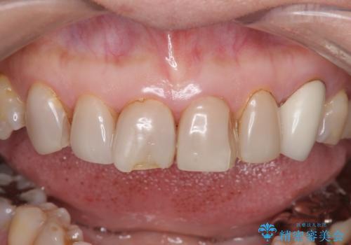 オールセラミッククラウン・セラミックインレー 口腔内全体の見た目の改善の治療前