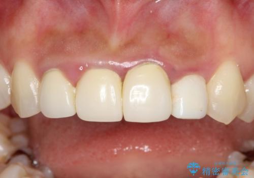 前歯のオールセラミック 腫れている歯肉が改善の治療前