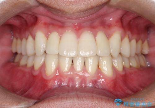 前歯のガタガタの矯正 下顎の前歯を1本抜歯してのインビザライン矯正の症例 治療後