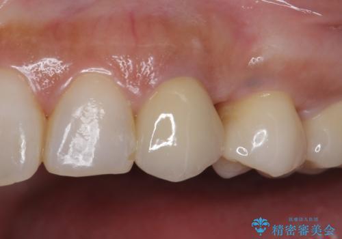 犬歯の変色 マウスピースで手軽にエクストリュージョン 歯ぐきの炎症をおさめますの治療後