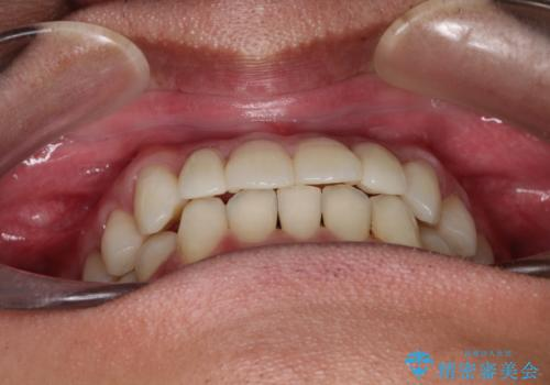 前歯のガタガタの矯正 下顎の前歯を1本抜歯してのインビザライン矯正の治療後