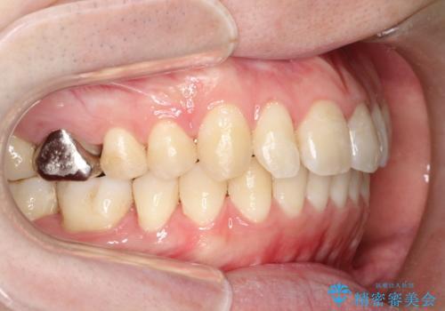 前歯でものが噛み切れない インビザラインによるオープンバイトの治療の症例 治療後