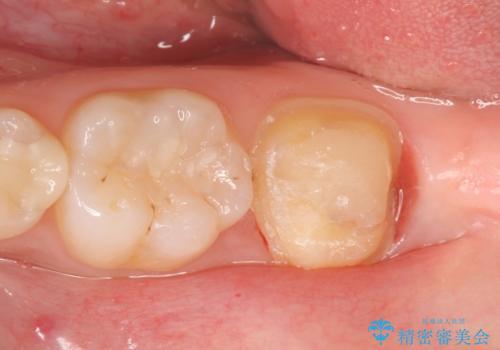 オールセラミッククラウン 奥歯の虫歯・深いポケットの除去の治療前