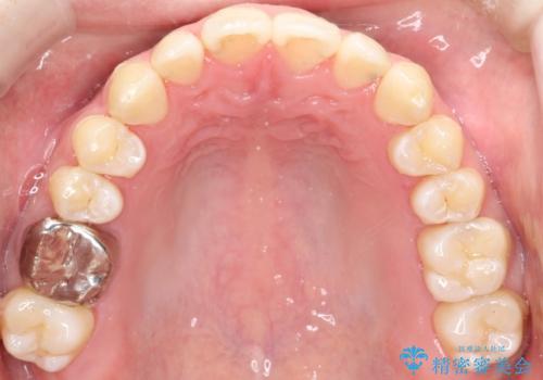 前歯でものが噛み切れない インビザラインによるオープンバイトの治療の治療後