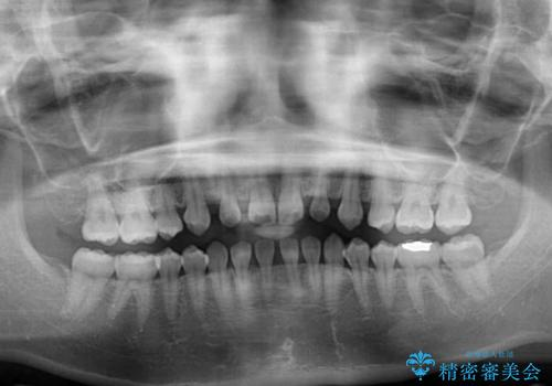 矯正治療とインプラント治療を同時に 総合歯科診療の治療前