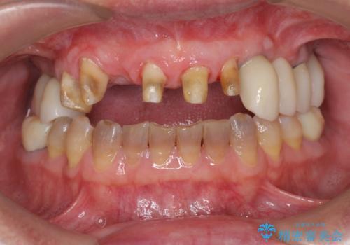 [歯周病治療]  歯周補綴 インプラント補綴の治療中