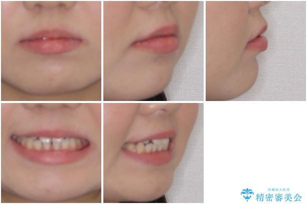 矯正治療とインプラント治療を同時に 総合歯科診療の治療前(顔貌)