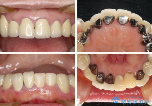 この際全てをしっかりと治療したい 総合歯科治療の治療前