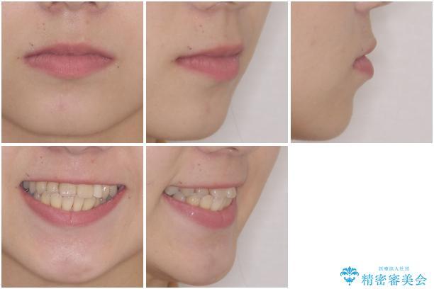 内側に倒れた歯並びの改善 クリアブラケットによる矯正治療の治療前(顔貌)