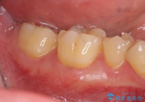 歯ぐきが下がり歯がしみる 歯肉移植による治療の治療後