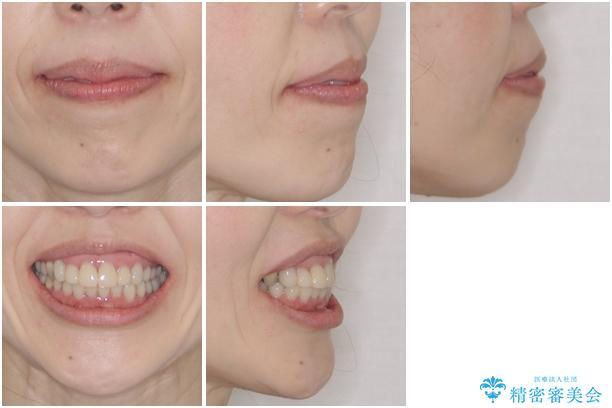 この際全てをしっかりと治療したい 総合歯科治療の治療前(顔貌)