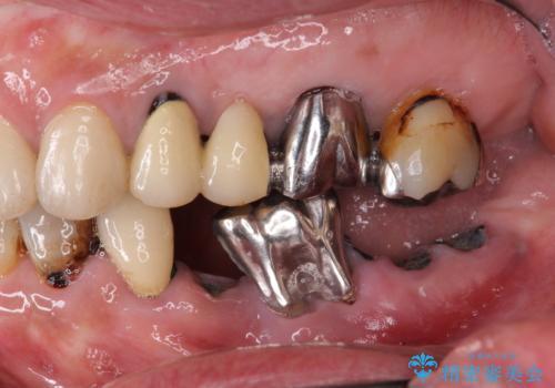 虫歯による歯の喪失 インプラントによる咬合機能回復の症例 治療前